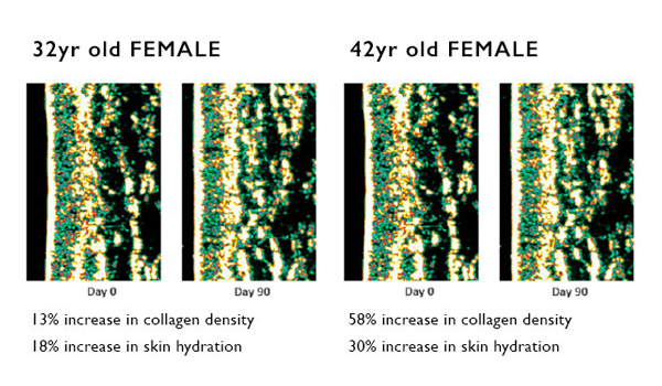 Comparison graphs of a 32yr old & 42yr old skin